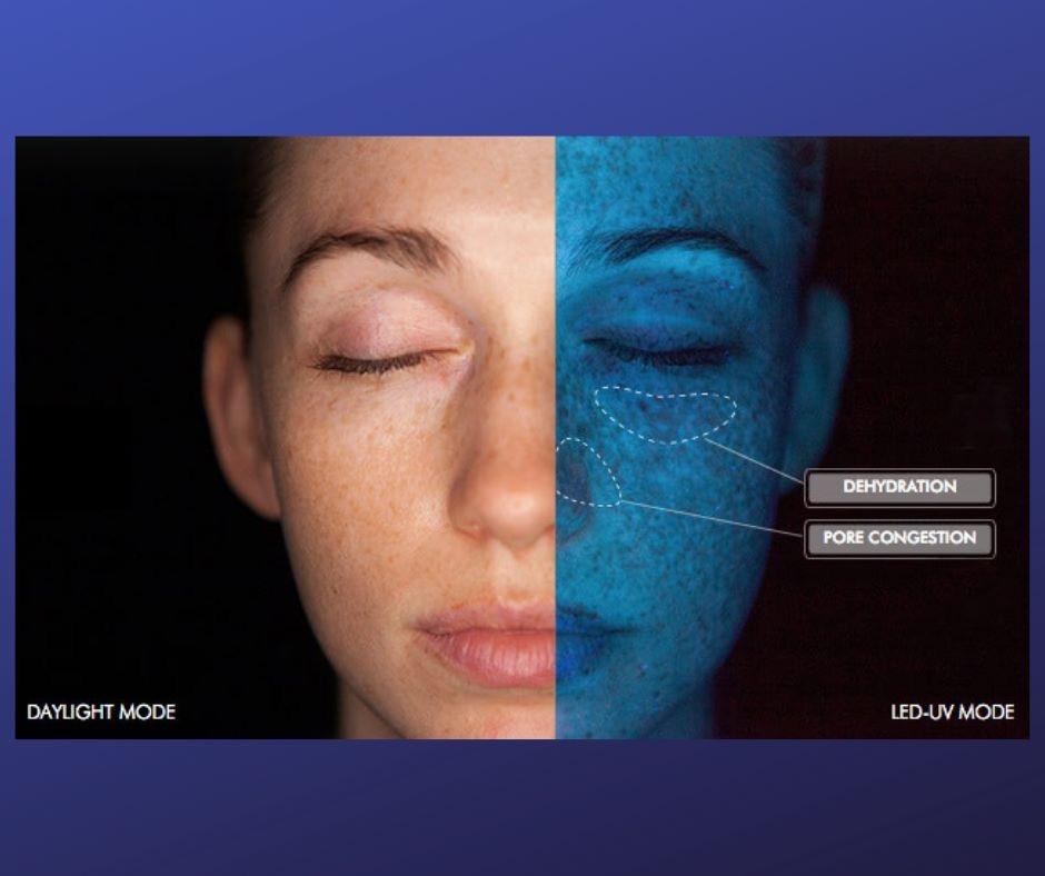esame della pelle in farmacia